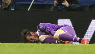Los peroneos de Gareth Bale